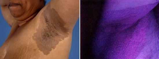 Эритразма в паху у мужчин