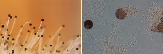 На фото споры грибков