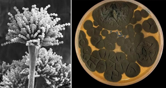 На фото плесневые грибы