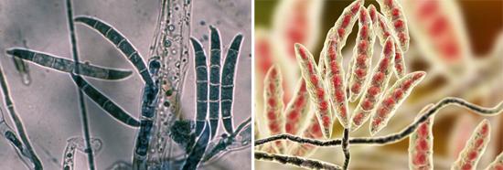 На фото плесневый грибок Fusarium
