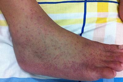 На фото симптомы лихорадки Денге