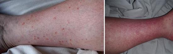 Симптомы и лечение Dengue virus
