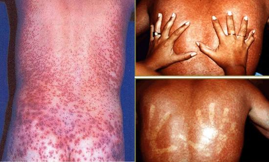 Симптомы и лечение лихорадки Денге