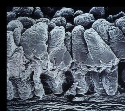 эпителий кишечника при ротавирусной инфекции