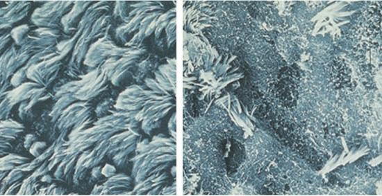 эпителий, поврежденный микоплазмами