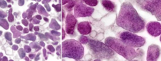 микоплазма гениталиум под микроскопом