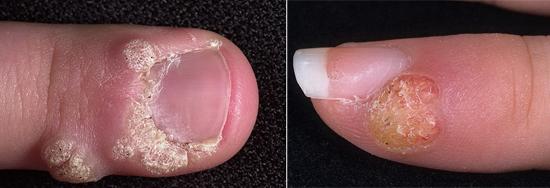 папилломы на пальце