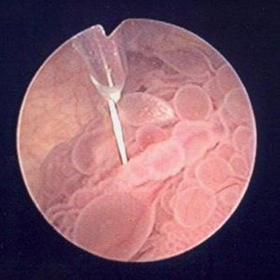 ВПЧ мочевой пузырь