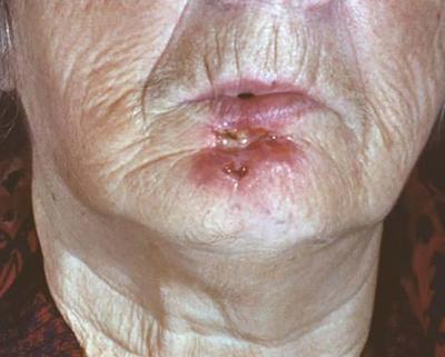 Заболевание на коже лица