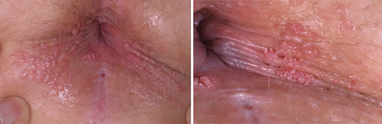 бородавки в анусе