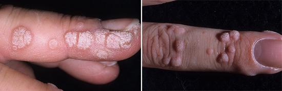 фото заболевания