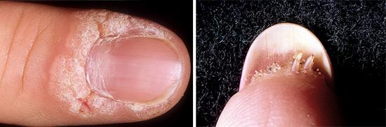 проявления вируса папилломы нужно лечить