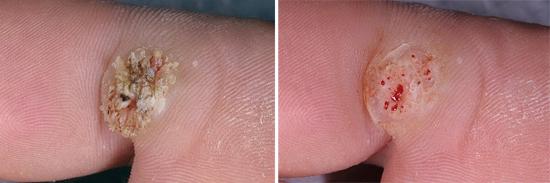 проявления ВПЧ на ноге