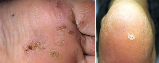 дерматологические заболевания