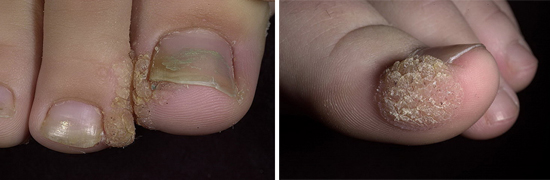 инфекционные заболевания кожи
