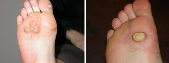 ВПЧ на ступнях