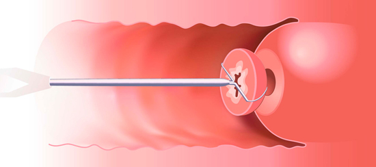 биопсия при дисплазии шейки матки