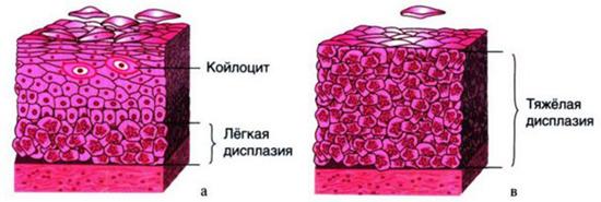 ДШМ стадии
