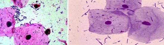микроскопия при вагинозе