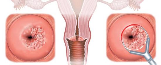 Биопсия матки с помощью сургитрона