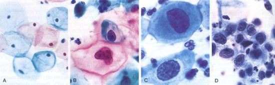 цитология рака шейки матки