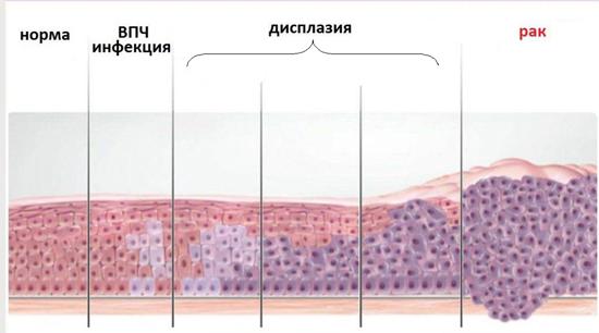 Стадии рака влагалища