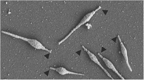прикрепительные органеллы микоплазм