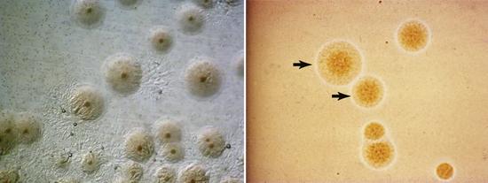 колонии микоплазм