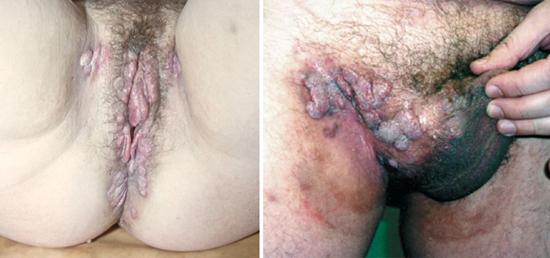вторичный сифилис