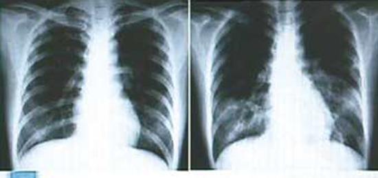 пневмония и ТОРС