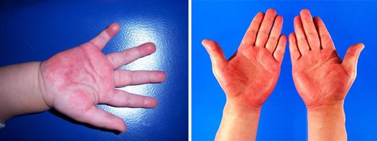 признаки псеводотуберкулеза