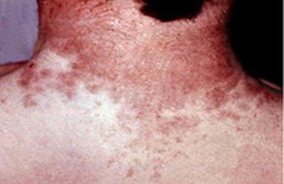 сыпь при псеводотуберкулезе