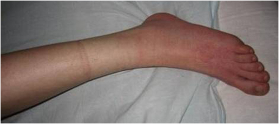 симптом носка