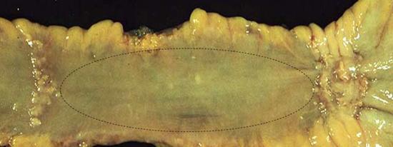 Симптомы и признаки брюшного тифа