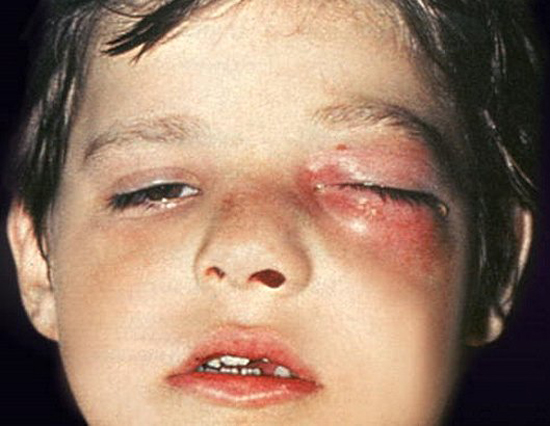 воспаление на лице