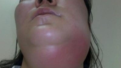 воспаление шеи