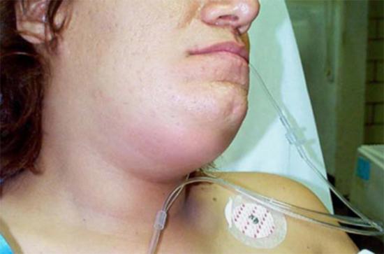 воспаоительные процессы полости рта