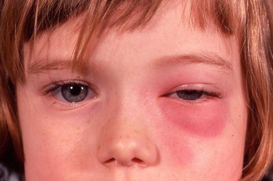 воспаление мягких тканей в области глаз