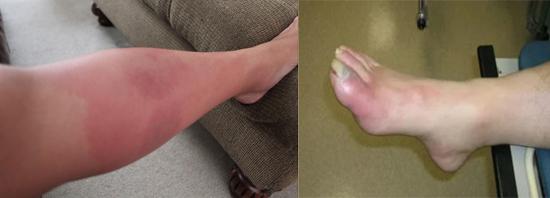 флегмона ног