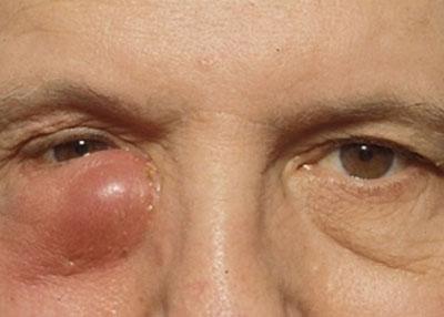 хромнический дакриоцистит