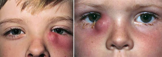 всопаление слезного мешка у детей