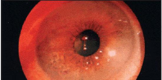 поражение глаза