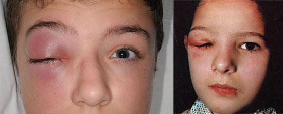 острое воспаление слезных желез у детей
