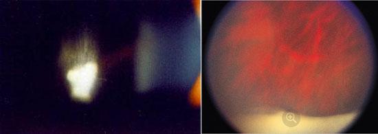 глаз при воспалении