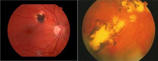 последствие глазных болезней