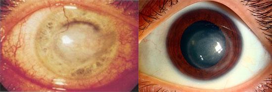 воспаление роговой оболочки глаза