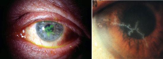 заболевание глаза