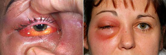 флегмона глазниц