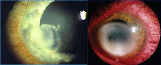 грибковые заболевания глаз
