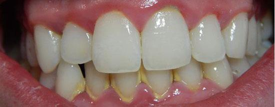 налет зубов